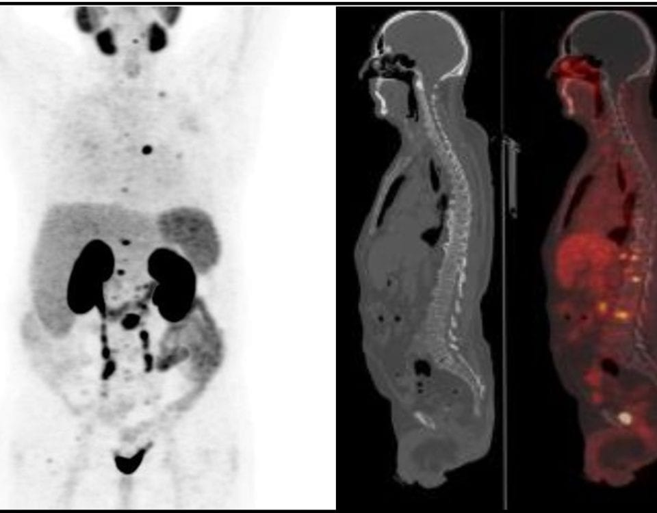 68_gallium_pet_ct_scan