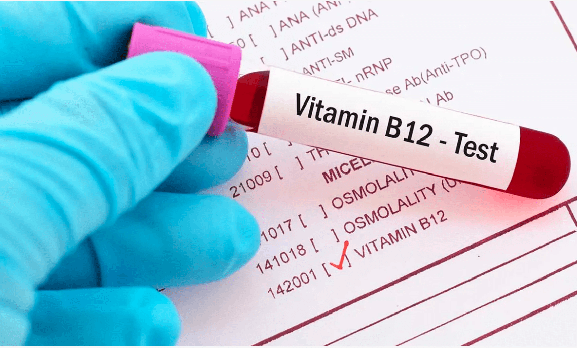 Vitamin B12: Deficiency Symptoms, Benefits, Sources,Causes,Test & Cost
