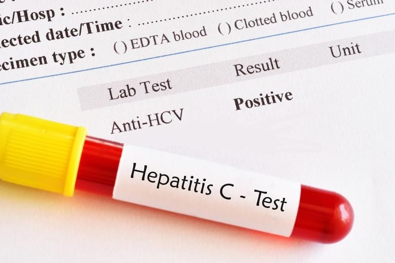 HCV-Test-Hepatitis-C-Virus-Testing