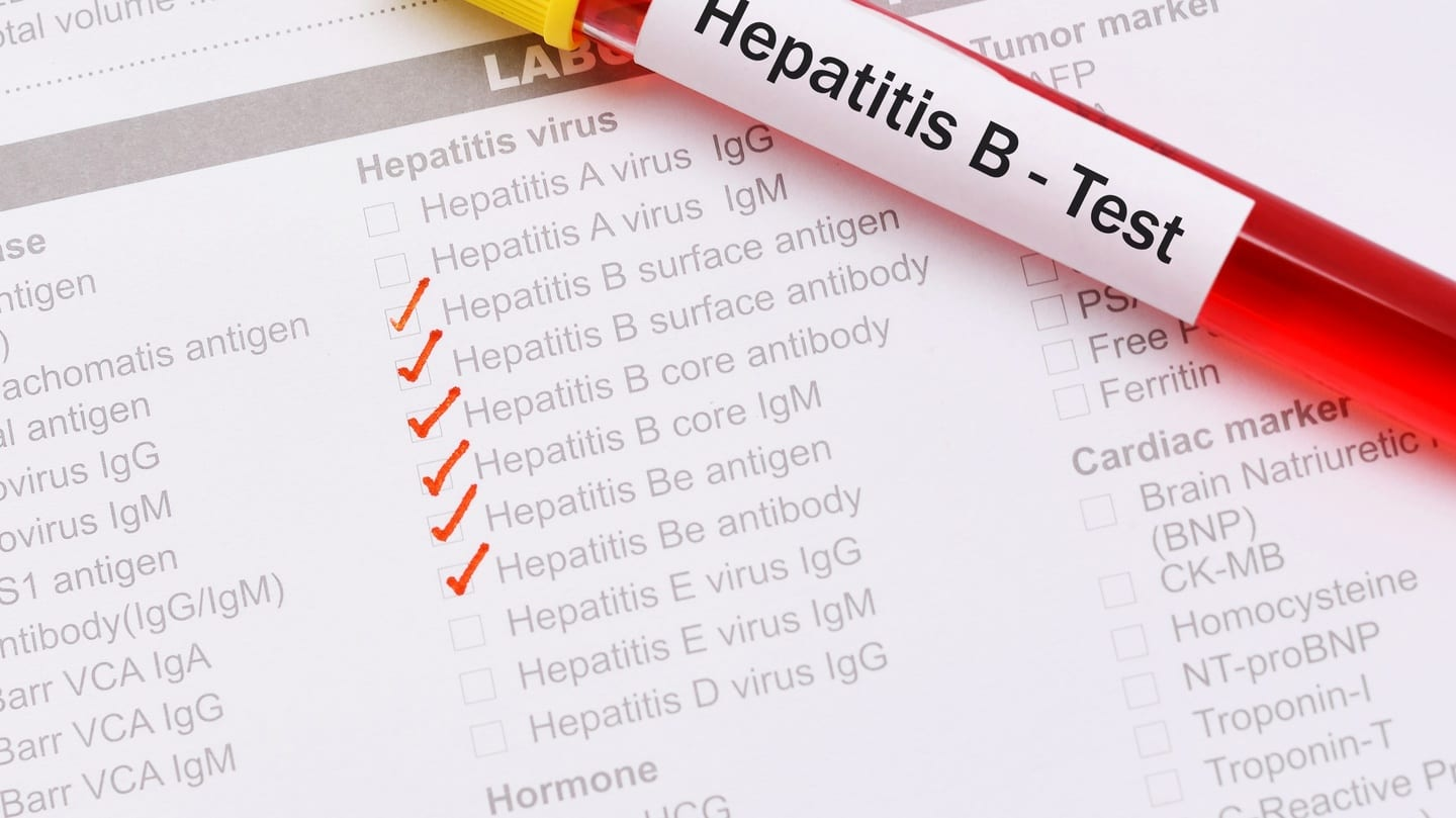 All You Need to Know About Hepatitis B Infection and HBsAg Test
