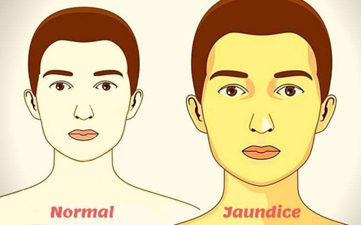 Jaundice: Prevention, Types and Diet of Jaundice | Jaundice Symptoms