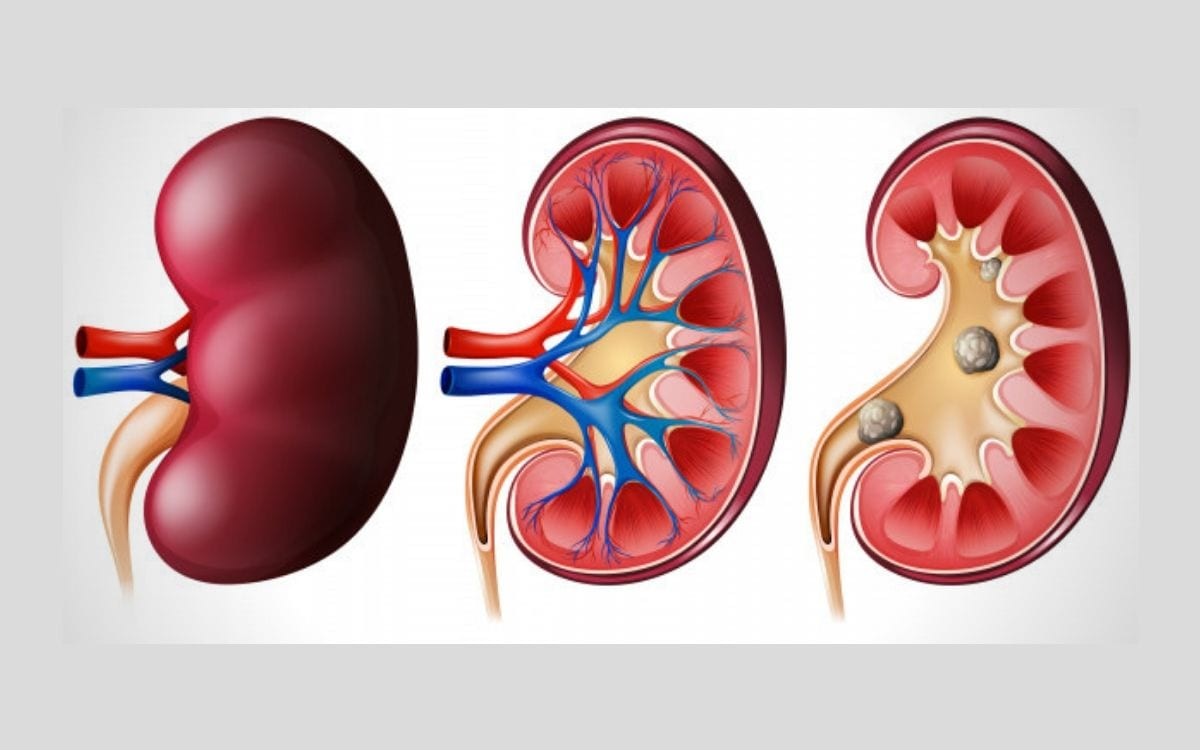 Kidney Stone (Renal Calculi): Types, Prevention, Diagnosis & Treatment