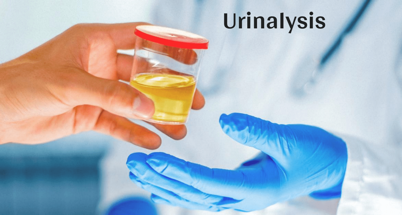 Urinalysis - Purpose, Testing Phases, Reasons And Results