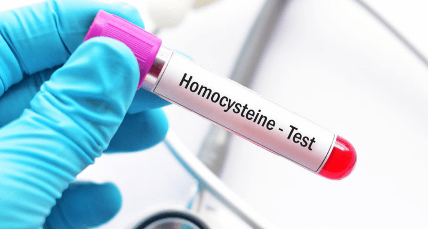 What Is Homocysteine