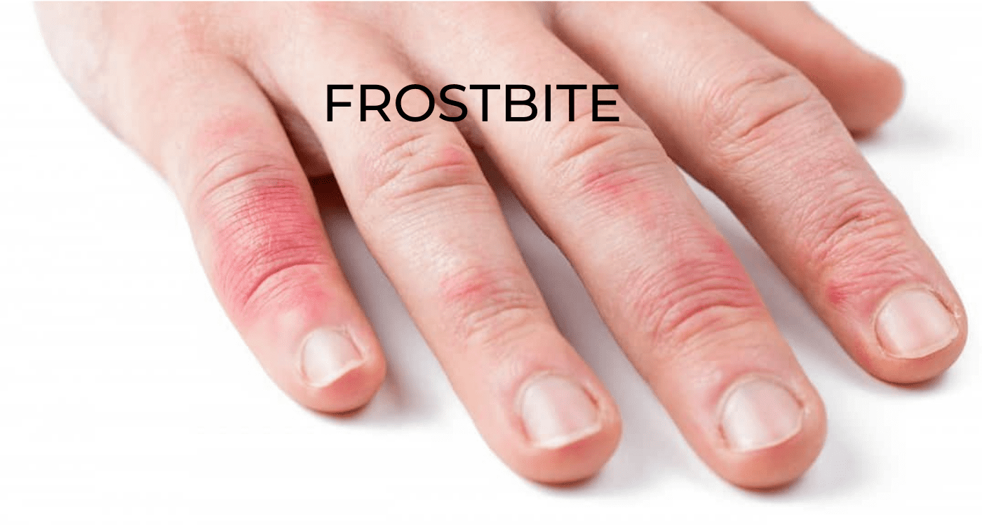 Frostbite - Symptoms, Causes, Risk factors And Complications